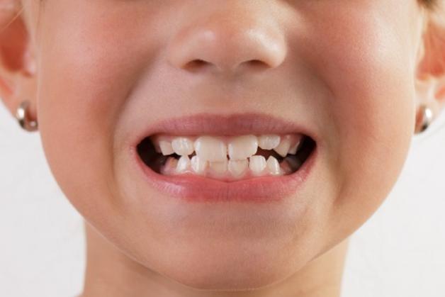Tuy hiếm gặp nhưng thói quen nghiến răng cũng góp phần khiuến men răng tổn thương, gây đau răng ở trẻ.