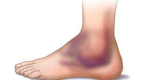 Cách chữa Giãn Dây Chằng cổ chân, mắt cá chân, gót chân Hiệu Quả