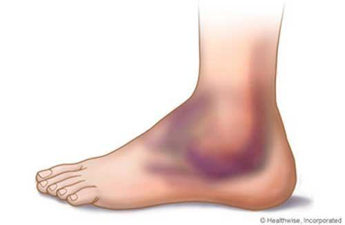 Triệu chứng giãn dây chằng cổ chân