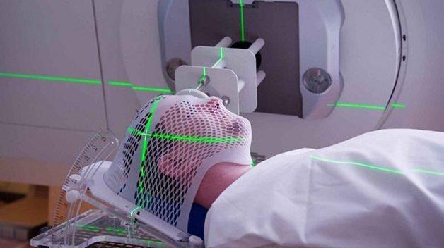 Xạ trị là cách điều trị bệnh ung thư vòm họng phổ biến nhất