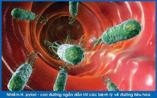 Vi khuẩn HP là loại vi khuẩn thường gặp trong niêm mạc dạ dày.