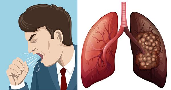 Các biểu hiện bệnh ung thư phổi thường chỉ xuất hiện ở giai đoạn muộn
