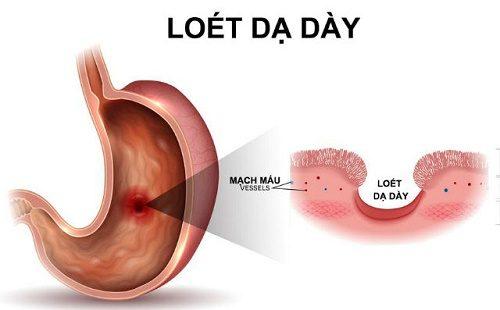 Loét dạ dày - tá tràng gây ra các cơn đau thường âm ỉ, kéo dài gây khó chịu cho người bệnh