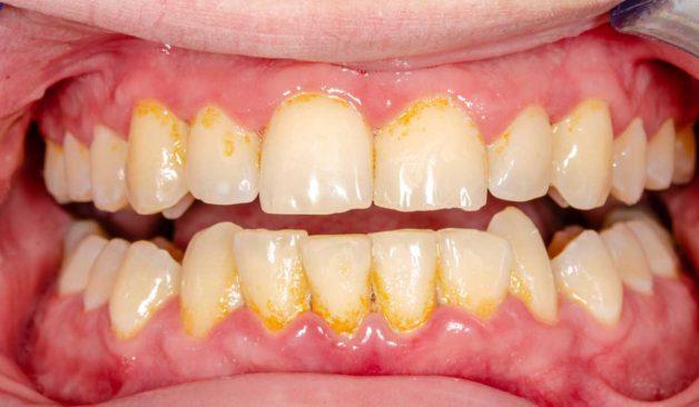 Cao răng là chất lắng cặn cứng đã vôi hoá và không dễ dàng lấy đi bằng các phương pháp vệ sinh răng miệng tại nhà