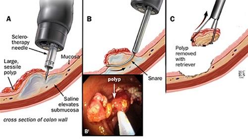 Phẫu thuật mổ cắt polyp đại tràng qua nội soi.