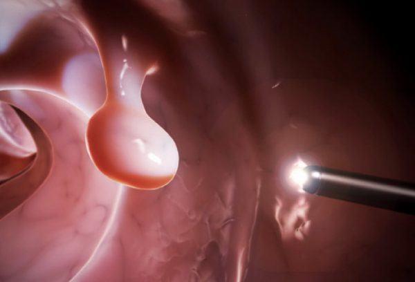 Với những polyp dạ dày có kích thước lớn hoặc có khả năng biến chuyển ung thư cần phẫu thuật cắt bỏ
