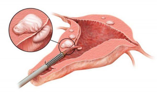 Cắt tử cung là một hình thức phẫu thuật cắt bỏ tử cung bao gồm cả thân tử cung và cổ tử cung.