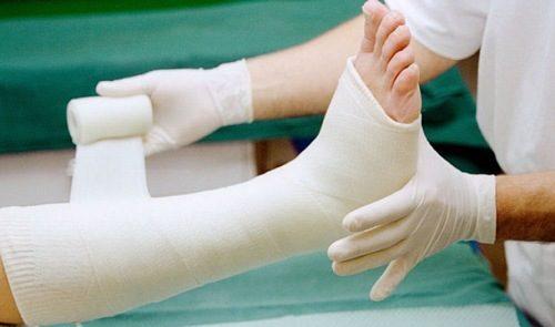 Bệnh nhân bó bột gãy xương cần được cố định chân tới khi bột khô