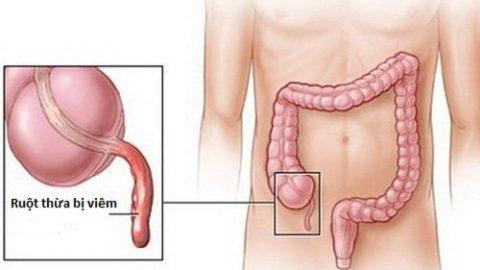 Chăm sóc bệnh nhân viêm phúc mạc ruột thừa