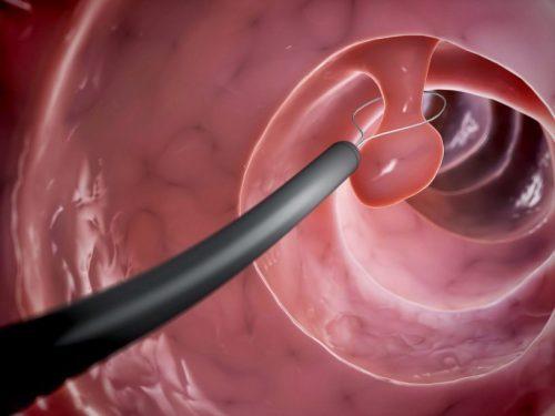 Đối những polyp có kích thước lớn cần phải được tiến hành phẫu thuật cắt bỏ để tránh biến chứng ung thư