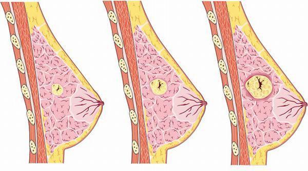 U nang tuyến vú là một u lành tính thường gặp ở nữ giới trong độ tuổi 30-40.
