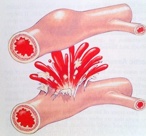 Tại Việt Nam, cứ 100.000 người thì có từ 50 - 150 người bị xuất huyết tiêu hóa.