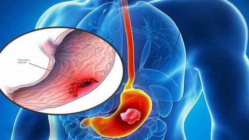 Ung thư dạ dày là bệnh nguy hiểm và có thể gây tử vong nhanh chóng nếu không được phát hiện và điều trị sớm