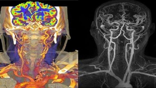 Chụp cắt lớp vi tính mạch máu não là gì