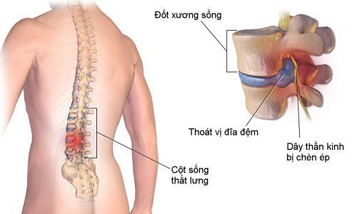 【KIẾN THỨC】Kỹ thuật Chụp cộng hưởng từ cột sống thắt lưng 2