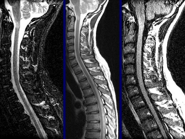 Chụp cộng hưởng từ là phương pháp chẩn đoán giúp khảo sát hiện đại, an toàn nhiều vùng trên cơ thể