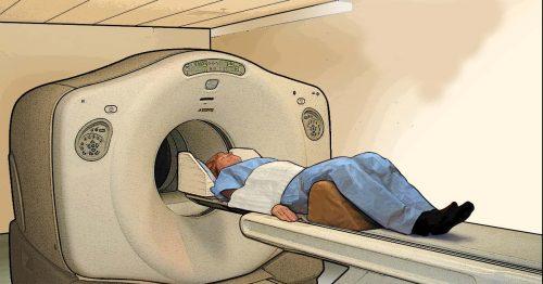Chụp PET CT có hại không? Cần phải làm gì trước khi chụp PET/CT 1