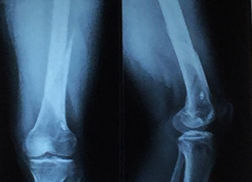 Chụp X quang khớp gối để PHÁT HIỆN 3 Bệnh lý ở đầu gối hay gặp 1