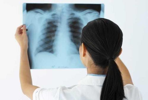 【GIẢI MÃ】Chụp X Quang Nhiều có HẠI không tới sức khỏe? 1