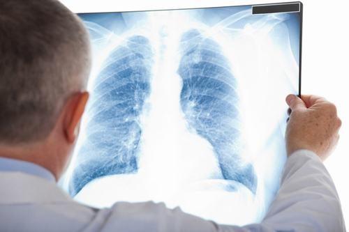 Chụp X quang ở đâu TỐT - UY TÍN - AN TOÀN nhất hiện nay 1