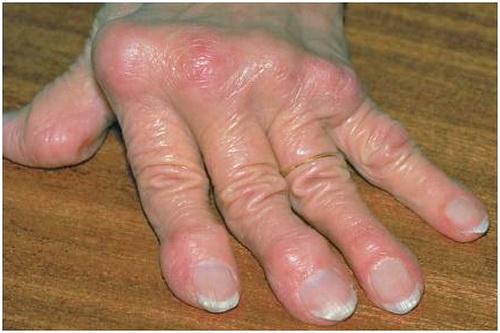 co-che-benh-sinh-benh-gout