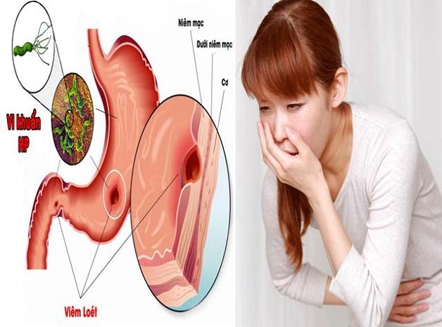 Vi khuẩn Hp gây viêm, loét và ung thư dạ dày