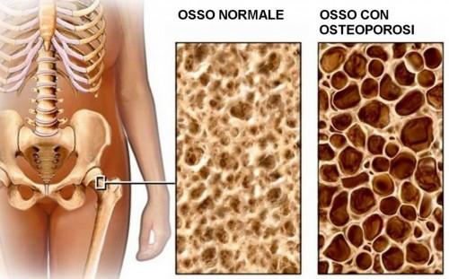Corticoid có nguy cơ gây loãng xương