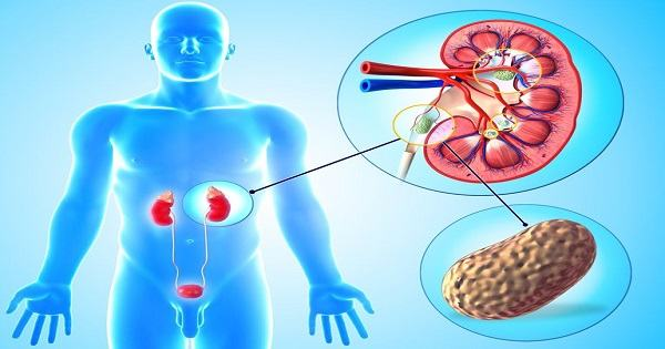 Sỏi thận cũng là nguyên nhân gây ra tình trạng đau bụng dưới ở cả nam và nữ
