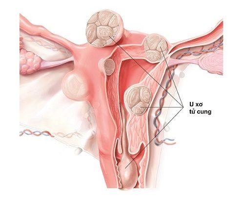 U xơ tử cung là những khối tăng trưởng của mô cơ tử cung, u xơ tử cung có thể dao động về số lượng và kích thước