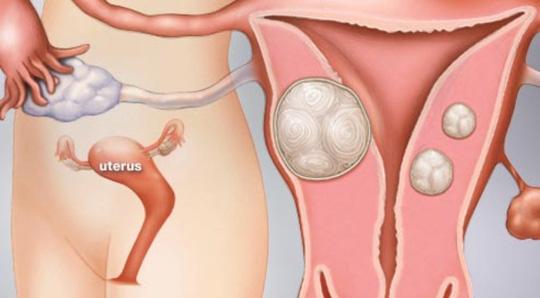 U xơ tử cung cũng là một trong những nguyên nhân gây đau sau khi quan hệ tình dục