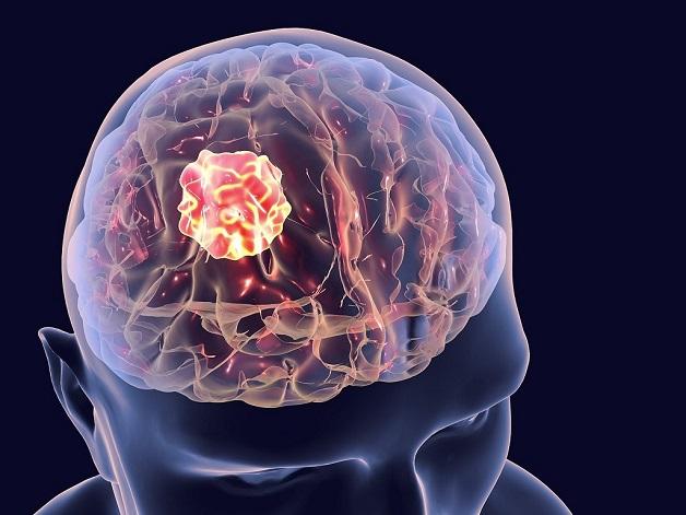 bị đau đầu âm ỉ do u não