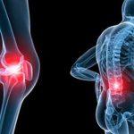 Dấu hiệu cảnh báo căn bệnh loãng xương ở người trẻ