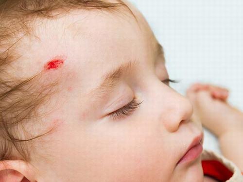 Tụ máu não là một trong những dạng chấn thương sọ não rất nguy hiểm