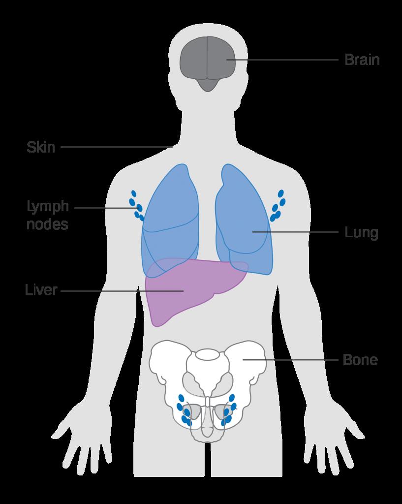 Ung thư giai đoạn cuối có khả năng di căn đến nhiều bộ phận ở xa như gan, phổi, xương...