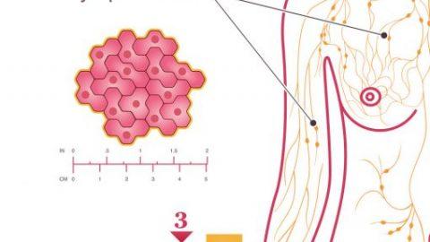 Dấu hiệu nhận biết ung thư vú giai đoạn III