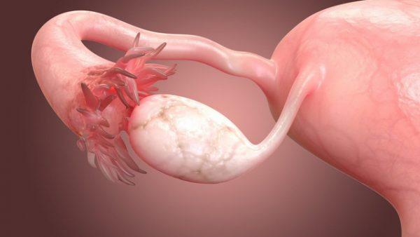 U nang buồng trứng xoắn là tình trạng khối u nang có kích cỡ lớn bị xoắn lại một cách đột ngột