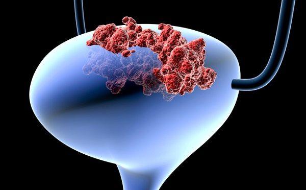 Dấu hiệu ung thư bàng quang bạn cần biết