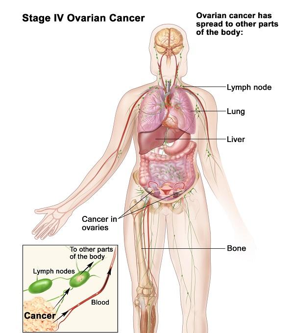 Ung thư buồng trứng giai đoạn cuối có khả năng di căn rộng đến các cơ quan như xương, phổi...