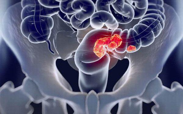 Ung thư đại tràng xảy ra khi các tế bào ung thư xuất hiện ở các vị trí trên đại tràng.