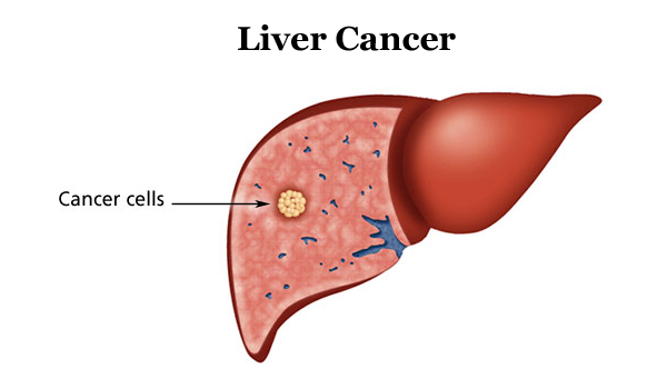 Dấu hiệu ung thư gan giai đoạn II