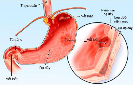 Viêm loét đường tiêu hóa là một trong những nguyên nhân gây đau lưng sau khi ăn