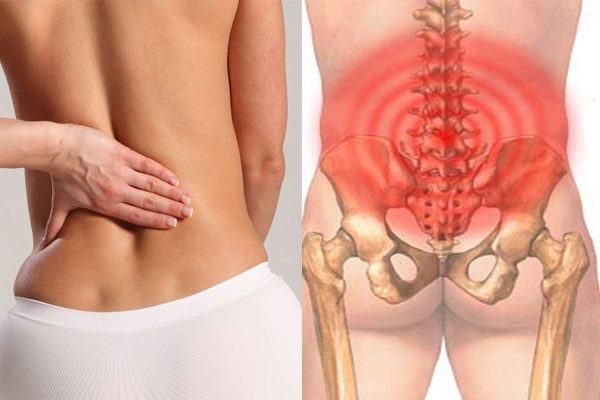 Viêm xương chậu hoặc thoát vị đĩa đệm cũng gây đau xương chậu