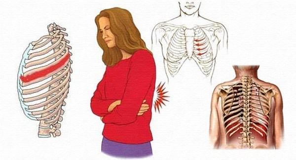 Các bệnh lý như căng cơ, gãy xương sườn... cũng gây triệu chứng đau xương sườn