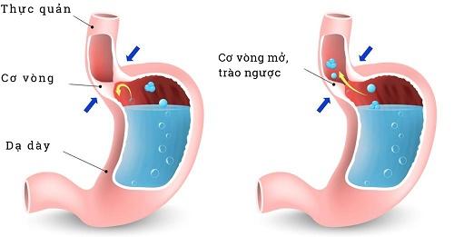 Đầy hơi, chướng bụng cũng là triệu chứng của bệnh trào ngược dạ dày, thực quản