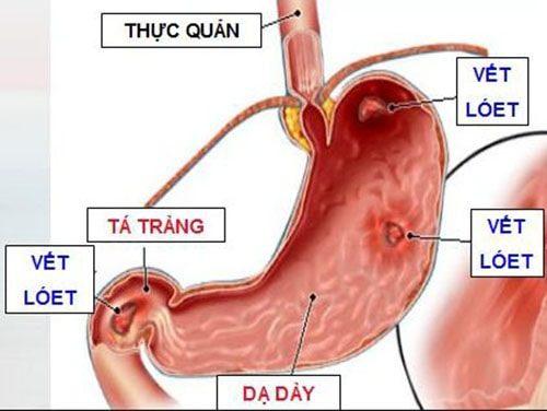 Viêm dạ dày và loét dạ dày cũng có thể là nguyên nhân gây cơn đau quặn bụng