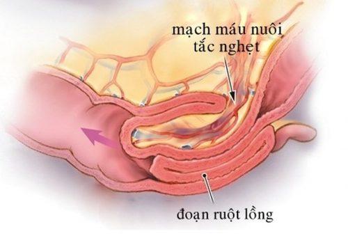 Các biểu hiện của bệnh lồng ruột gồm: đau bụng dữ dội, nôn, đầy hơi, chướng bụng, khó tiêu, xuất hiện lẫn máu hoặc chất nhầy trong phân, …