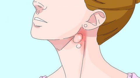8 điều bạn cần biết về bệnh u lympho
