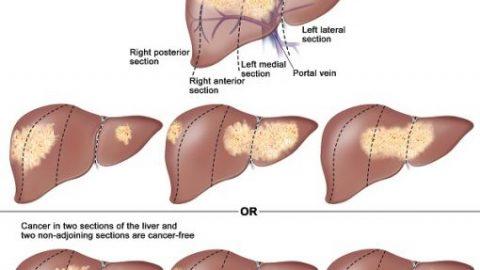 Điều trị ung thư gan giai đoạn 3