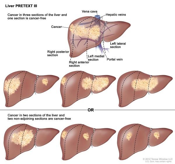 Điều trị ung thư gan giai đoạn III như thế nào phụ thuộc vào nhiều yếu tố