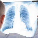 Điều trị ung thư phổi không tế bào nhỏ bằng cách nào?